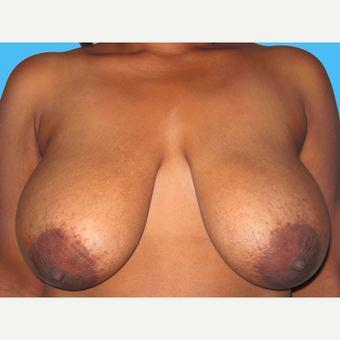 Breast Reduction before 3809970