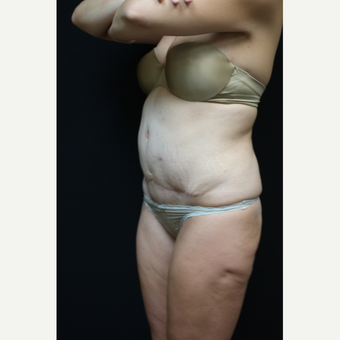 30 year old woman treated with Liposuction after 3089193
