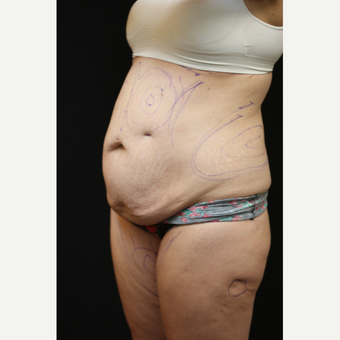 30 year old woman treated with Liposuction before 3089193
