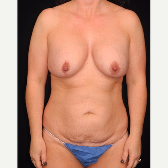 45-54 year old woman with DIEP flap breast reconstruction before 3742060