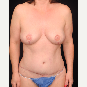 45-54 year old woman with DIEP flap breast reconstruction after 3742060