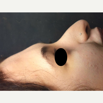 18-24 year old woman treated with Rhinoplasty before 3211746