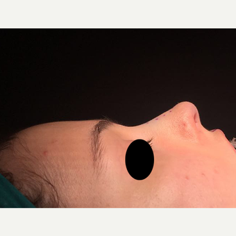 18-24 year old woman treated with Rhinoplasty after 3211746
