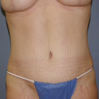 38 year old woman treated with Tummy Tuck after 3059949