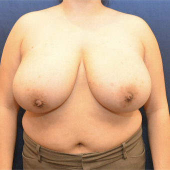 45-54 year old woman treated with Breast Reduction before 3731375