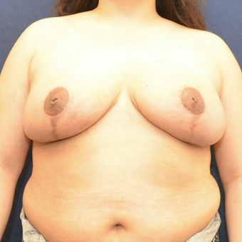 45-54 year old woman treated with Breast Reduction after 3731375