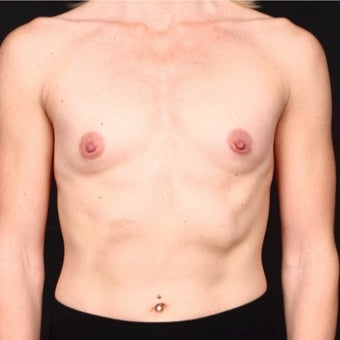 35-44 year old woman treated with Breast Augmentation before 2071135