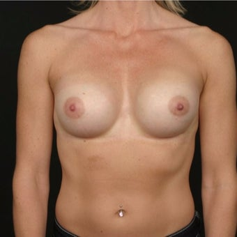 35-44 year old woman treated with Breast Augmentation after 2071135