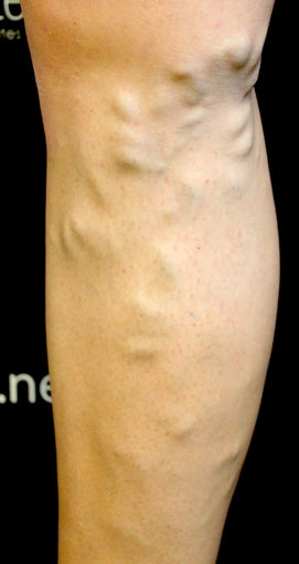 42 Year Old Woman Treated for Varicose Veins before 1136069