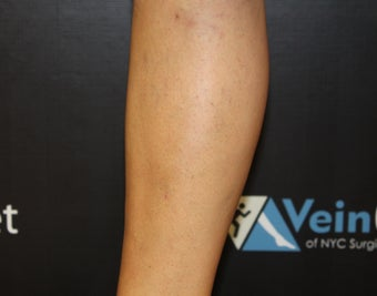 42 Year Old Woman Treated for Varicose Veins after 1136069