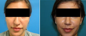 Rhinoplasty 26 Year Old Woman before 1098173
