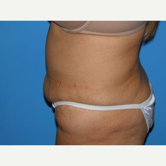 41 year old woman treated with Tummy Tuck 1745380