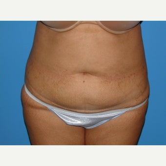 41 year old woman treated with Tummy Tuck before 1745380