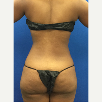 25-34 year old woman treated with Laser Liposuction after 3142101