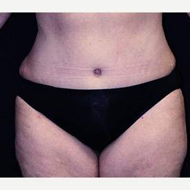 Tummy Tuck and Breast Reduction after 3332886