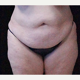 Tummy Tuck and Breast Reduction before 3332886
