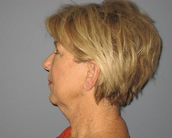 66 Year Old Minifacelift and Eyelid Lift Patient 1475083