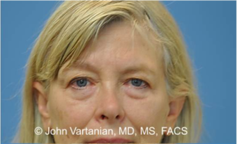 55-64 year old woman treated with Eyelid Surgery before 3810138