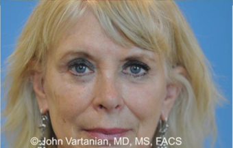 55-64 year old woman treated with Eyelid Surgery after 3810138