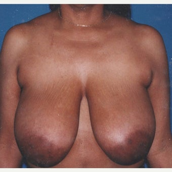 55-64 year old woman treated with Breast Reduction before 2303926
