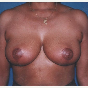 55-64 year old woman treated with Breast Reduction after 2303926