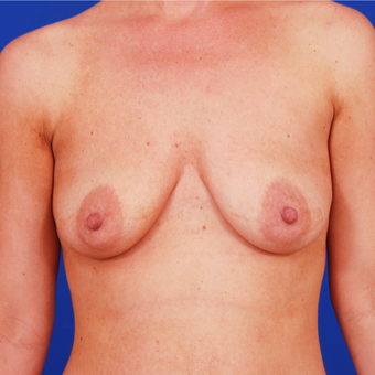 18-24 year old woman treated with Breast Lift with Implants before 3459423
