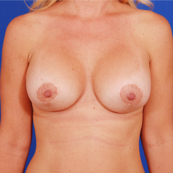 18-24 year old woman treated with Breast Lift with Implants after 3459423