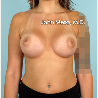 18-24 year old woman treated with Breast Implants after 3266907