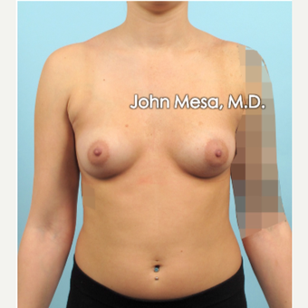 18-24 year old woman treated with Breast Implants before 3266907