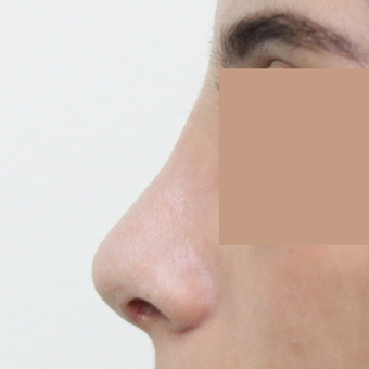 25-34 year old woman treated with Rhinoplasty after 3565678
