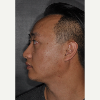 35-44 year old man treated with Rhinoplasty 8 months post-op after 3499947