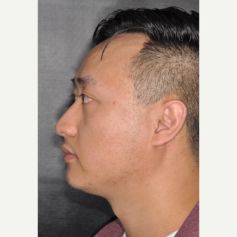 35-44 year old man treated with Rhinoplasty 8 months post-op before 3499947