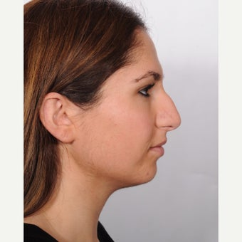 Rhinoplasty before 2595427