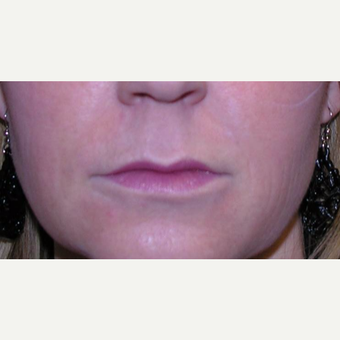 35-44 year old woman treated with Juvederm after 3372452