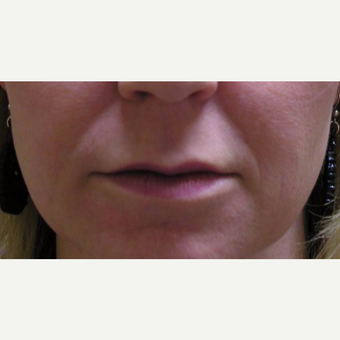 35-44 year old woman treated with Juvederm before 3372452