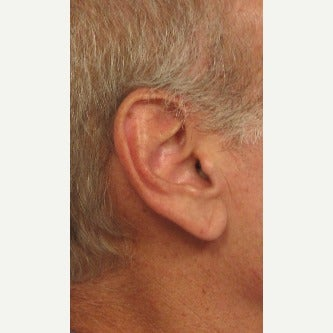 55-64 year old man treated with Ear Lobe Surgery before 2458983