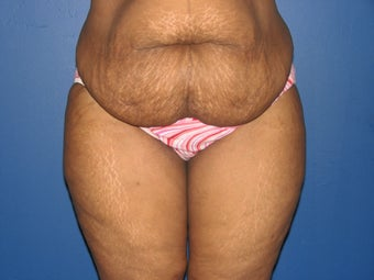 45 year old mother of 2 with a tummy tuck 1098420