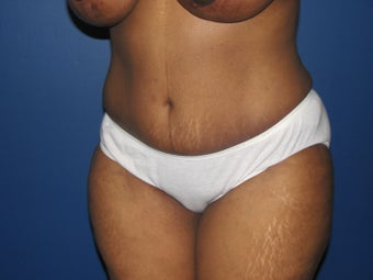 45 year old mother of 2 with a tummy tuck after 1098420