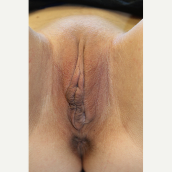25-34 year old woman treated with Labiaplasty before 3523254