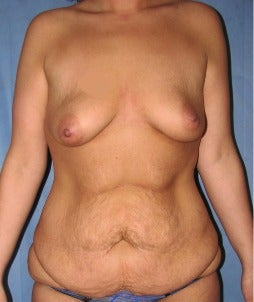 25-34 year old woman treated with Mommy Makeover before 3174122