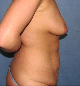 25-34 year old woman treated with Mommy Makeover 3174122