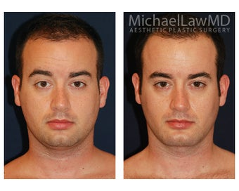 Liposuction before 840034