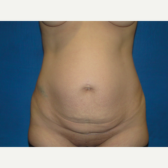 34 year old treated with Tummy Tuck before 3787817