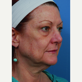 55-64 year old woman treated with Facelift before 3696754