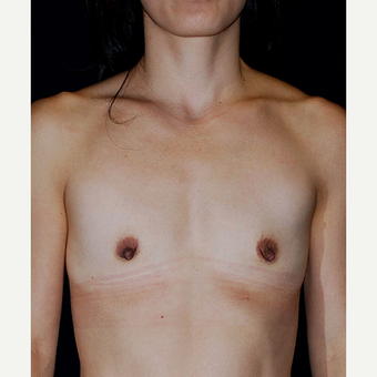 45-54 year old woman treated with Breast Augmentation before 2995305