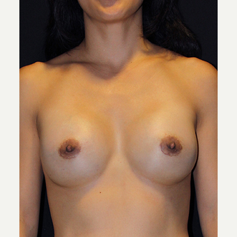 45-54 year old woman treated with Breast Augmentation after 2995305