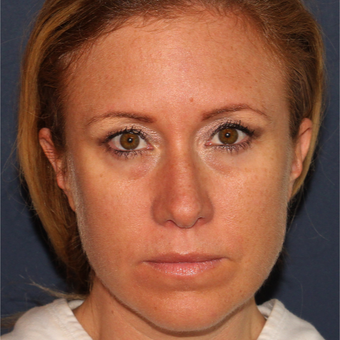 37 year old woman treated with 1 syringe of Restylane for under eye hollowness/tear troughs before 3059854