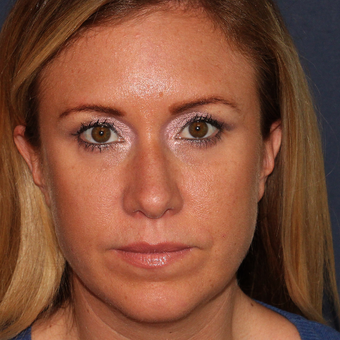 37 year old woman treated with 1 syringe of Restylane for under eye hollowness/tear troughs after 3059854