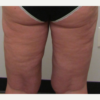 Inner Thigh Liposuction for this 42 Year Old Woman after 3181998