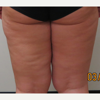 Inner Thigh Liposuction for this 42 Year Old Woman before 3181998